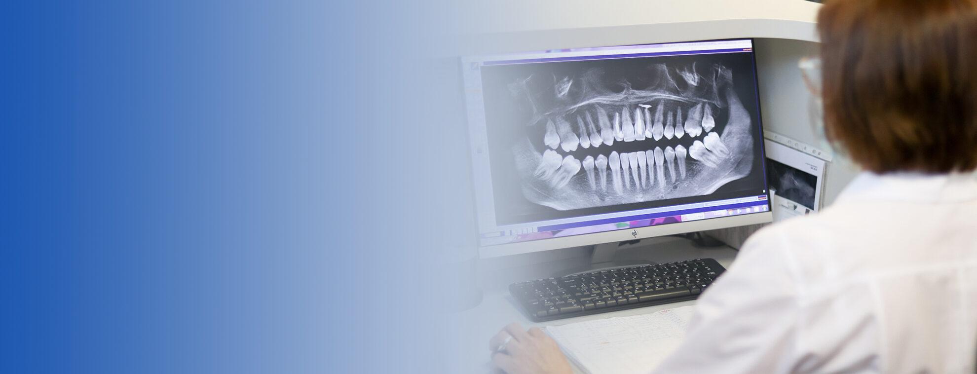 Экспертная расшифровка снимков <br>системой искусственного <br>интеллекта Diagnocat