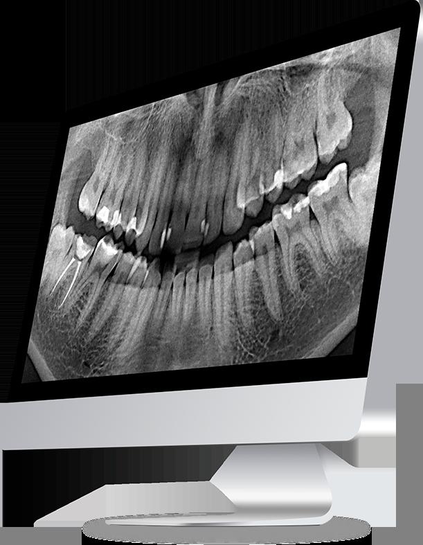 расшифровка стоматологических снимков diagnocat