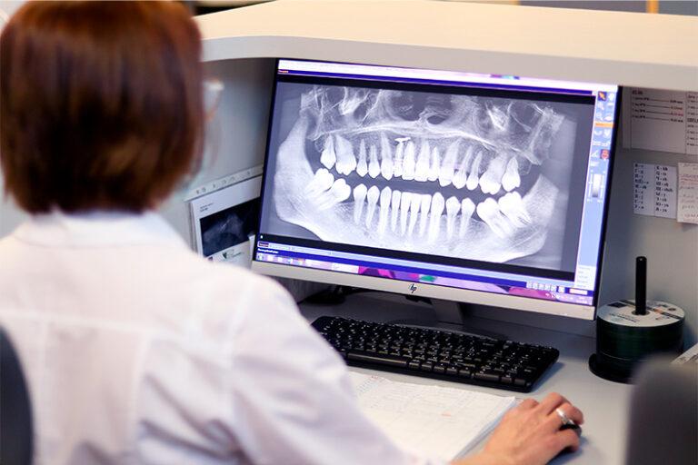 расшифровка стоматологических снимков diagnocat владивосток